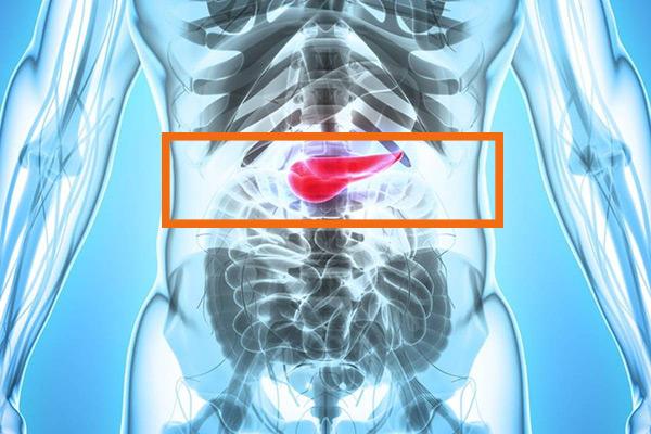 pankreas kanseri nedenleri